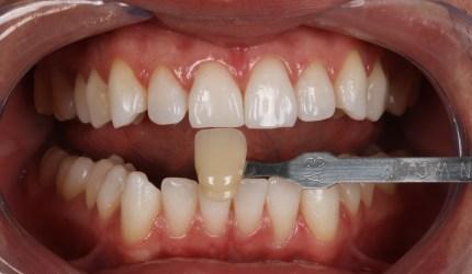 Clareamento Dental – Associação de técnicas para obtenção de efetividade e naturalidade