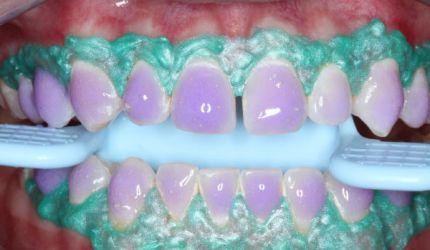 Uma geração de dentes azuis: clareamento exige cuidados especiais