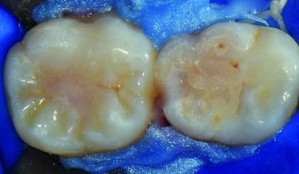 Selante resinoso invasivo em fóssulas e fissuras de molaresde paciente com risco ao desenvolvimento de lesões de cárie
