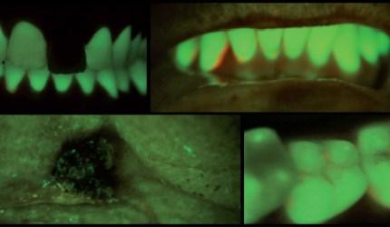 Ampliando a visão bucal com fluorescência óptica