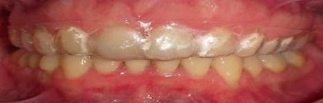 Intra Oral Frontal (utilizando placa Essix)