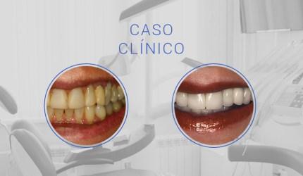 Harmonização do sorriso com cimentação de facetas: avaliação após 4 anos