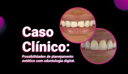 Odontologia digital: possibilidades de planejamento estético
