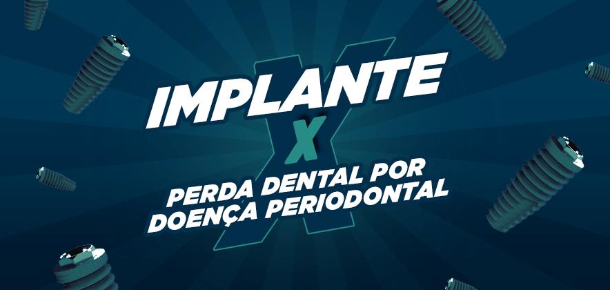 Implante x Perda dental por doença periodontal
