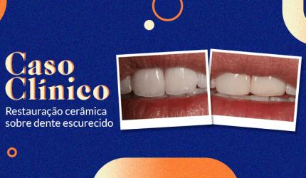 Caso clínico: utilizando facetas cerâmicas sobre dente escurecido