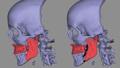 blod-dental-cremer-as-tecnologias-3d-na-ortodontia-figura01