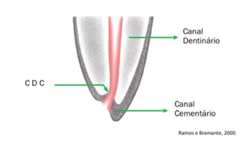 cdc-odontometria-no-tratamento-endodontico