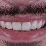 melhora na aparência estética do sorriso do paciente