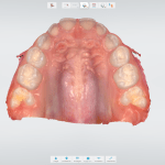 escaneamento intraoral superior