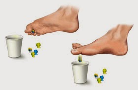 Consider, toe walking in adults treatment remarkable