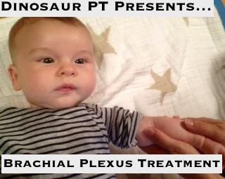 brachial plexus injury treatment