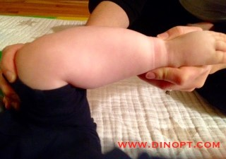 positional clubfoot
