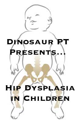 hip dysplasia children
