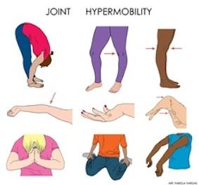 hyper mobility