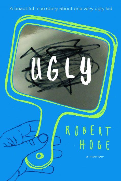 Robert Hoge UGLY