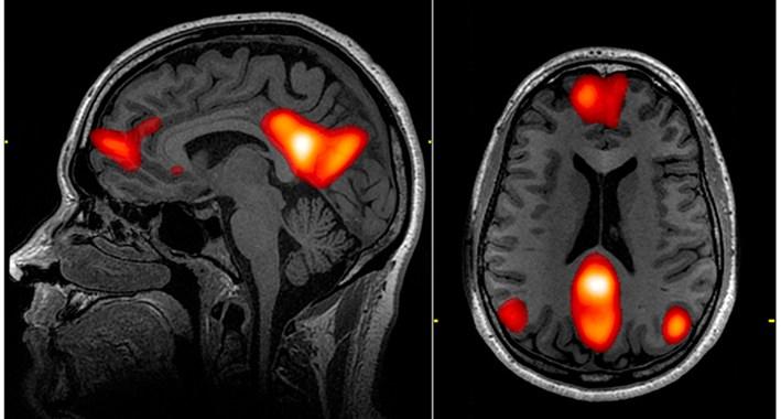 Wat psilocybine met je hersenen doet