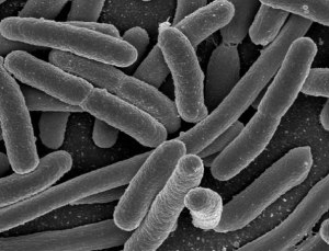 Electron microscope image of bacteria.