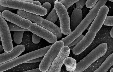Electron microscope image of bacteria.