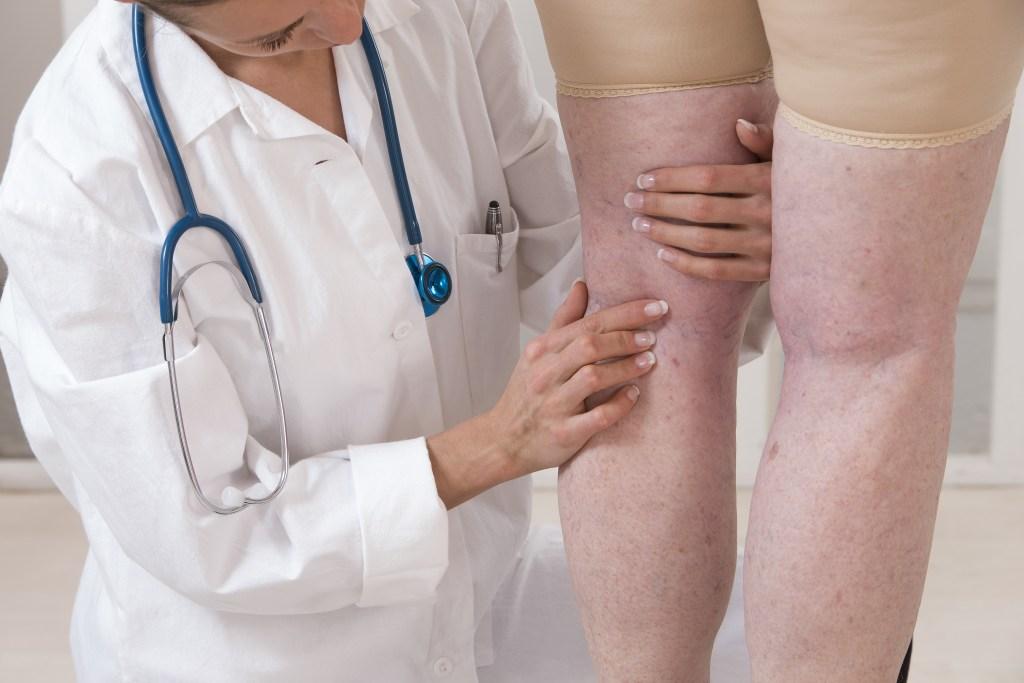como você pode tratar úlceras nas pernas