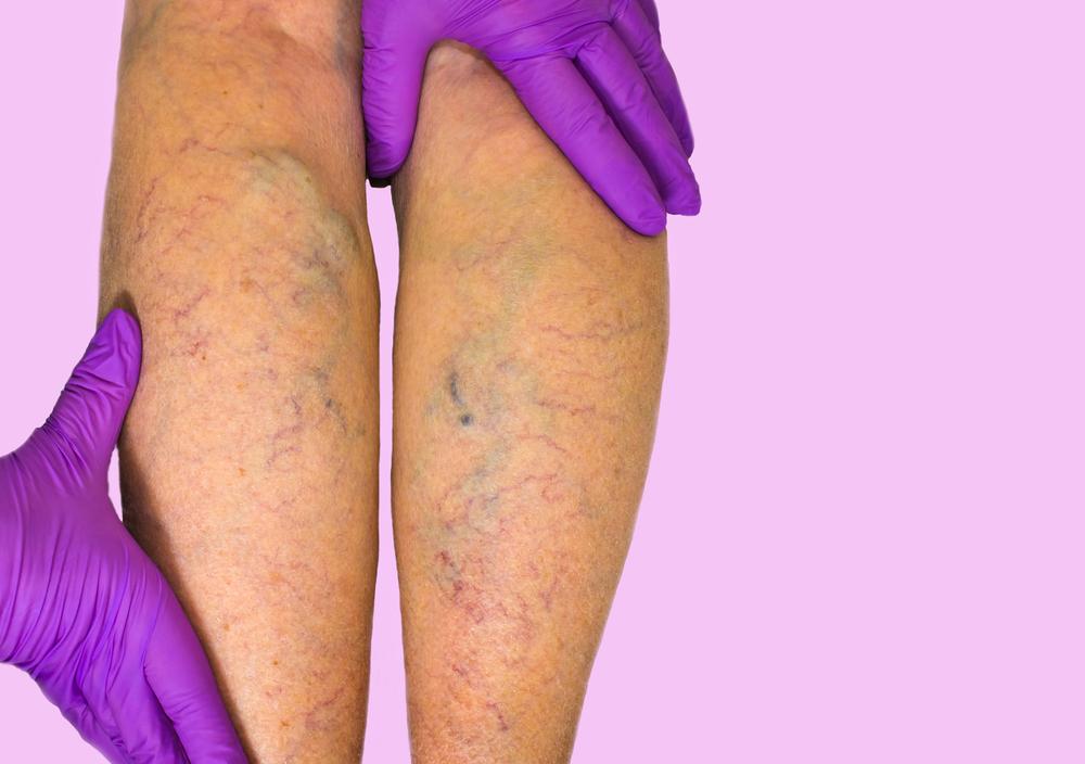 Cirurgia de varizes a laser: saiba tudo sobre os assunto