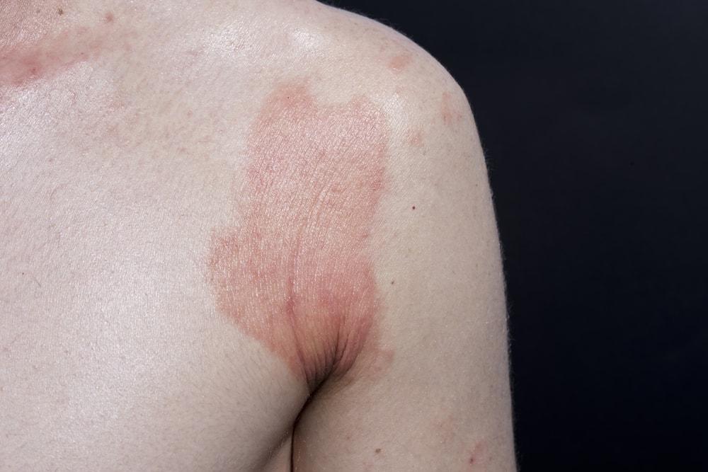 Entenda a diferença entre os 7 tipos de dermatite