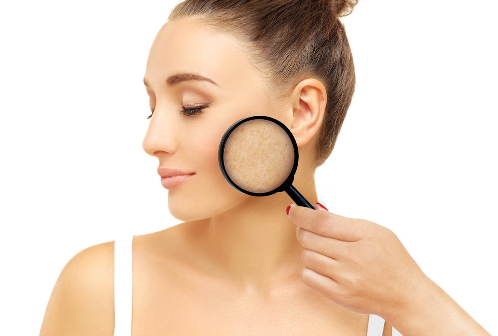 Problema de pele: quais são os mais comuns?