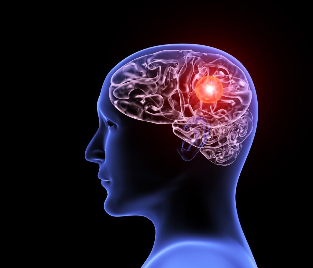 Aneurisma cerebral e infecções bucais: entenda a relação
