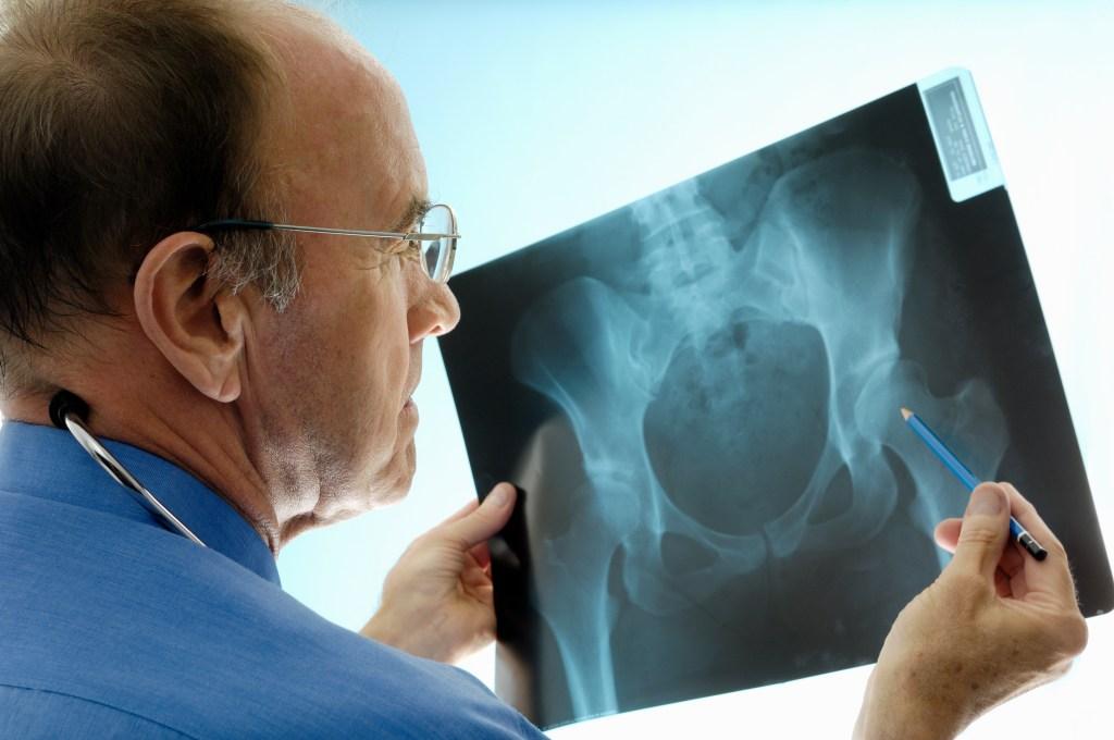7 cuidados essenciais para a saúde dos ossos