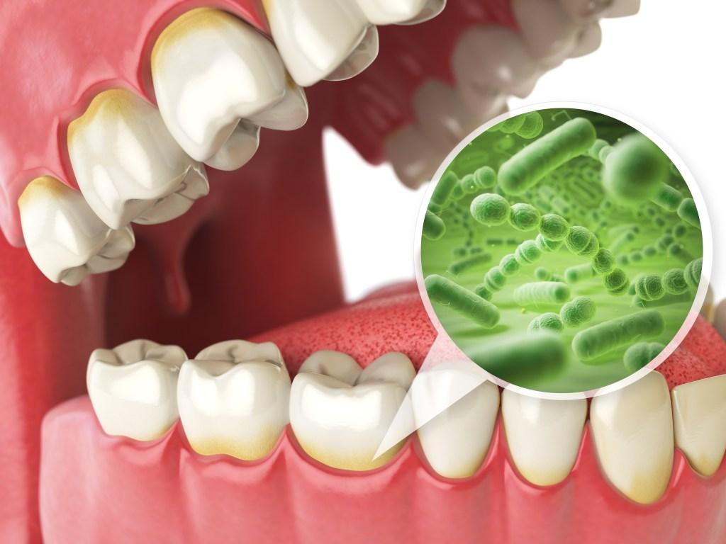 Veja como a placa bacteriana pode colocar a saúde em risco
