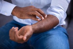 Psoríase: o que é, causas, sintomas e tratamento