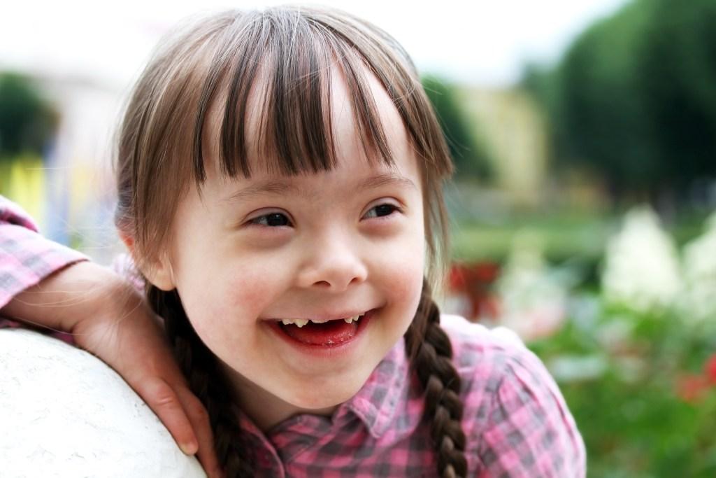 Síndrome de Down: o que é e como identificar