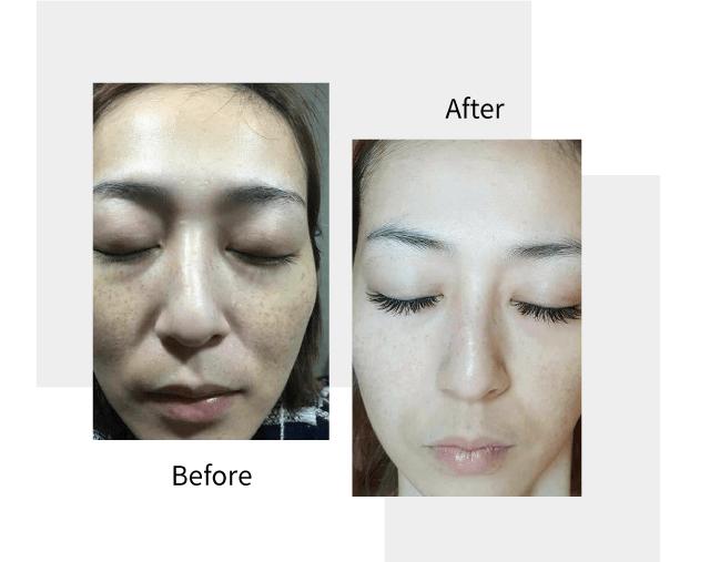 Lighten dark spots before and after
