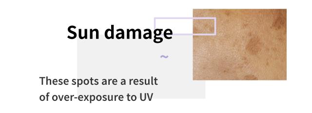 Sun damage spots