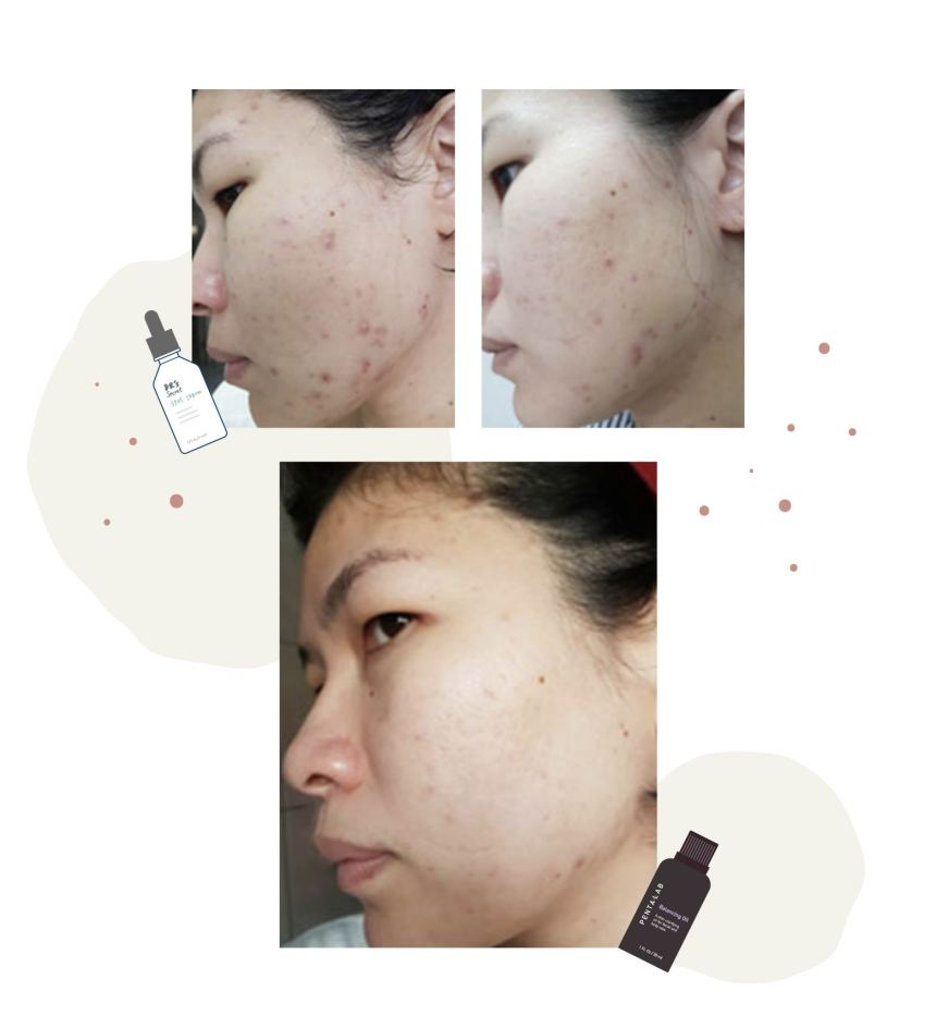 Balancing oil review for acne skin