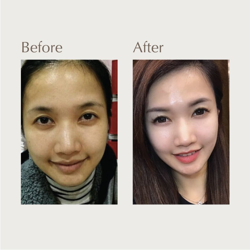 DR's Secret review before and after