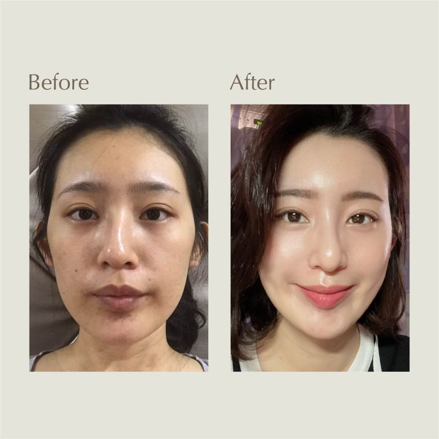 Elena Testimonial Before and After