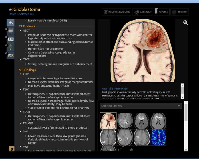 IA em Radiologia