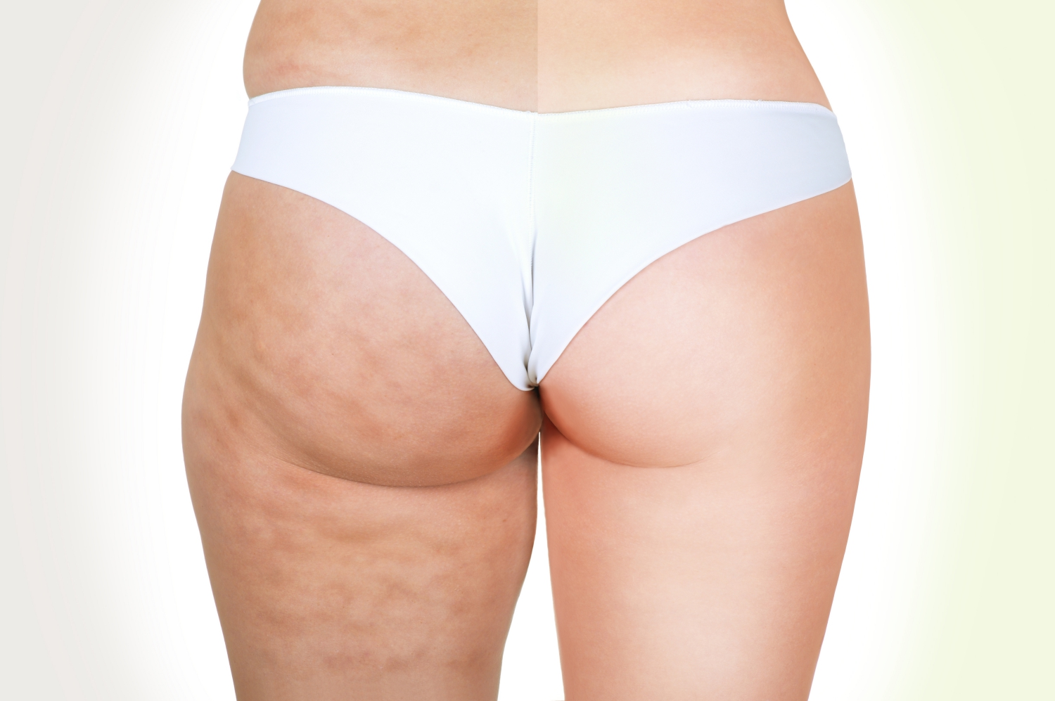 cellulite vs no cellulite - Is getting rid of cellulite as easy as foam rolling every day?