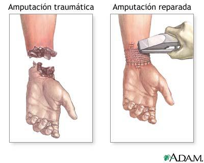 4. Acrotomofilia & Desorden de identidad de la integración corporal