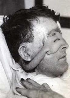 En una batalla en la Primera Guerra Mundial, Yeo perdió sus párpados y su rostro fue desfigurado por el fuego. A través de una intervención pionera realizada por Sir Harold Gillies, fue operado con éxito