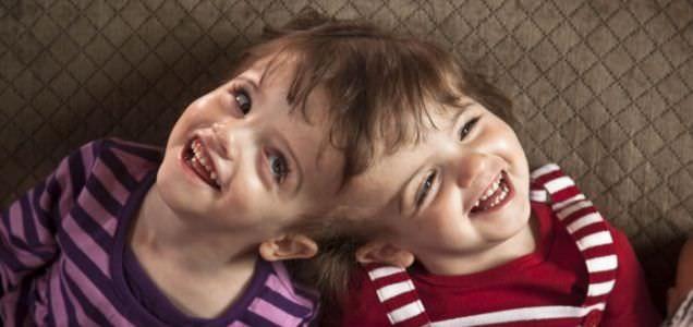 10. Algunos gemelos siameses pueden escuchar los pensamientos y ver a través de los ojos del otro.