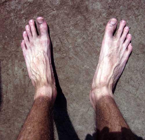 16. Es como si hubiesen agarrado los pies de alguien y los hubiesen puesto en las piernas de un africano.