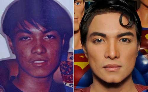 Resultado de imagen para surgery to look like famous