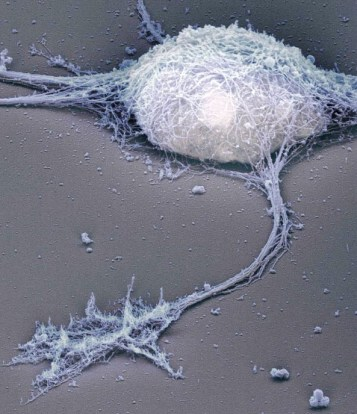 Single neuron under the electron microscope Bernd Knöll (University of Tübingen), Jürgen Berger, and Heinz Schwarz (Max-Planck-Institute for Developmental Biology).jpg