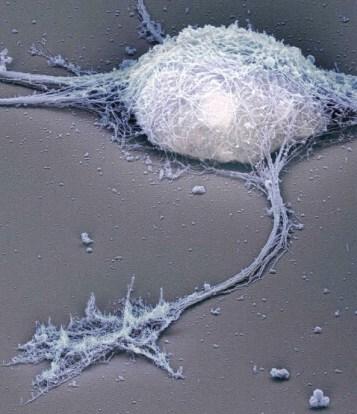 Single neuron under the electron microscope Bernd Knöll (University of Tübingen), Jürgen Berger, and Heinz Schwarz (Max-Planck-Institute for Developmental Biology).jpg