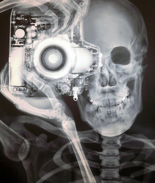 xray, xray camera and head by Nick Veasey, cool xray bro