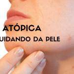 Dermatite atópica – Cuidando da Pele