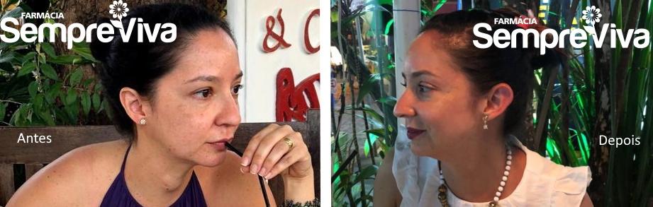 antes e depois lugol