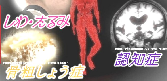 ゴースト血管
