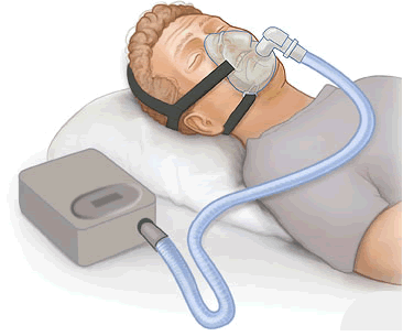 It's dangerous to buy secondhand CPAP machines online